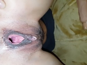 free pictures gape ass